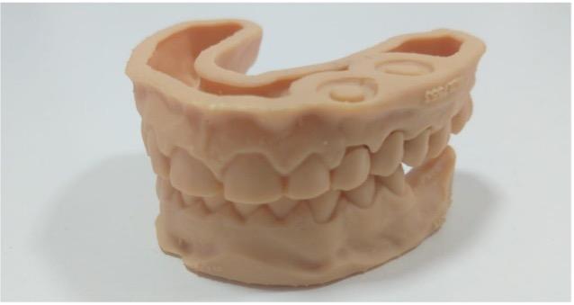3D Dental Printing Limburg | Prothetiek